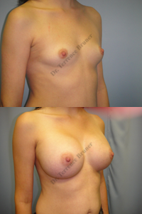 breast-aug-11-left